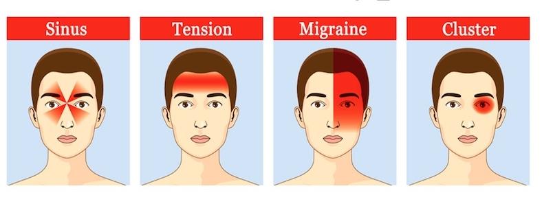 Tot ce trebuie sa stii despre migrene